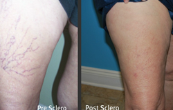 ftmyers-sclerotherapy-blog1
