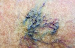 Varicose vein. Macro. Spider vein. Woman skin