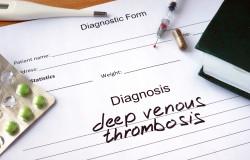 deep venous thrombosis.