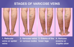vein issues fort myers eveinscreening